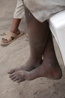 Many of the children don't have shoes to wear.