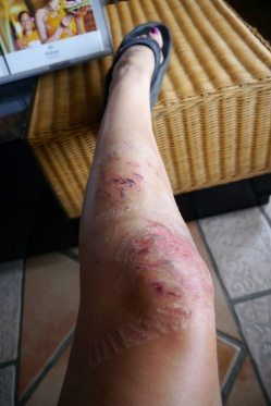 Man, my legs were ugly before but now... yikes!